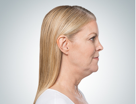 kybella right-before.jpg