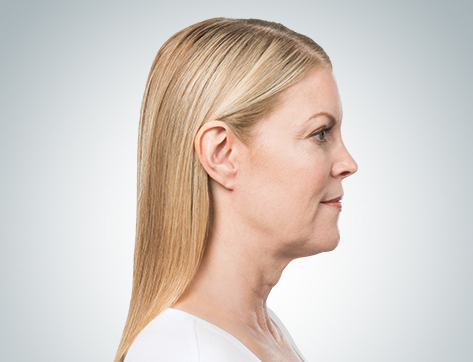 kybella right-after.jpg