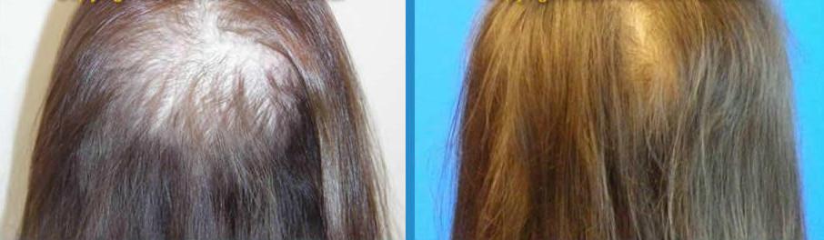 before-after-sunetics-3.jpg