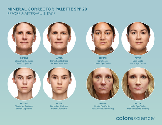 CS_MineralCorrectorPalette_Before&After_2017-02-06.png