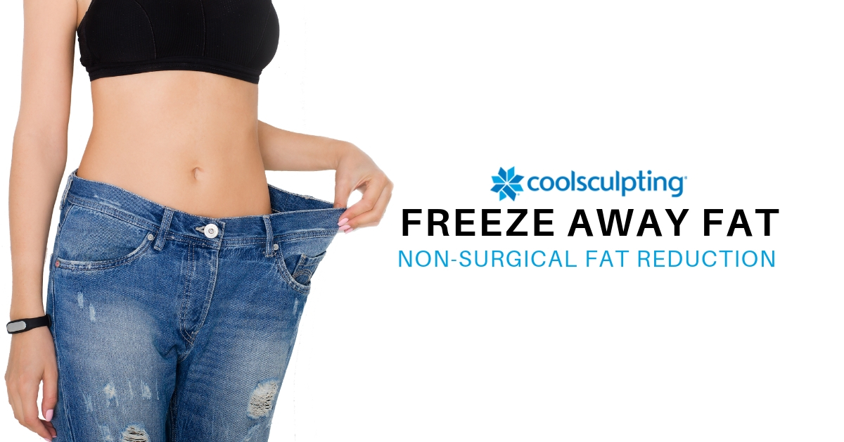 Coolsculpting_Monarch_3.jpg