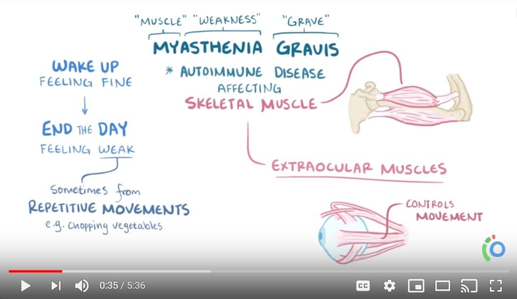 What is MG? - Myasthenia gravis - causes, symptoms, treatment, pathology
