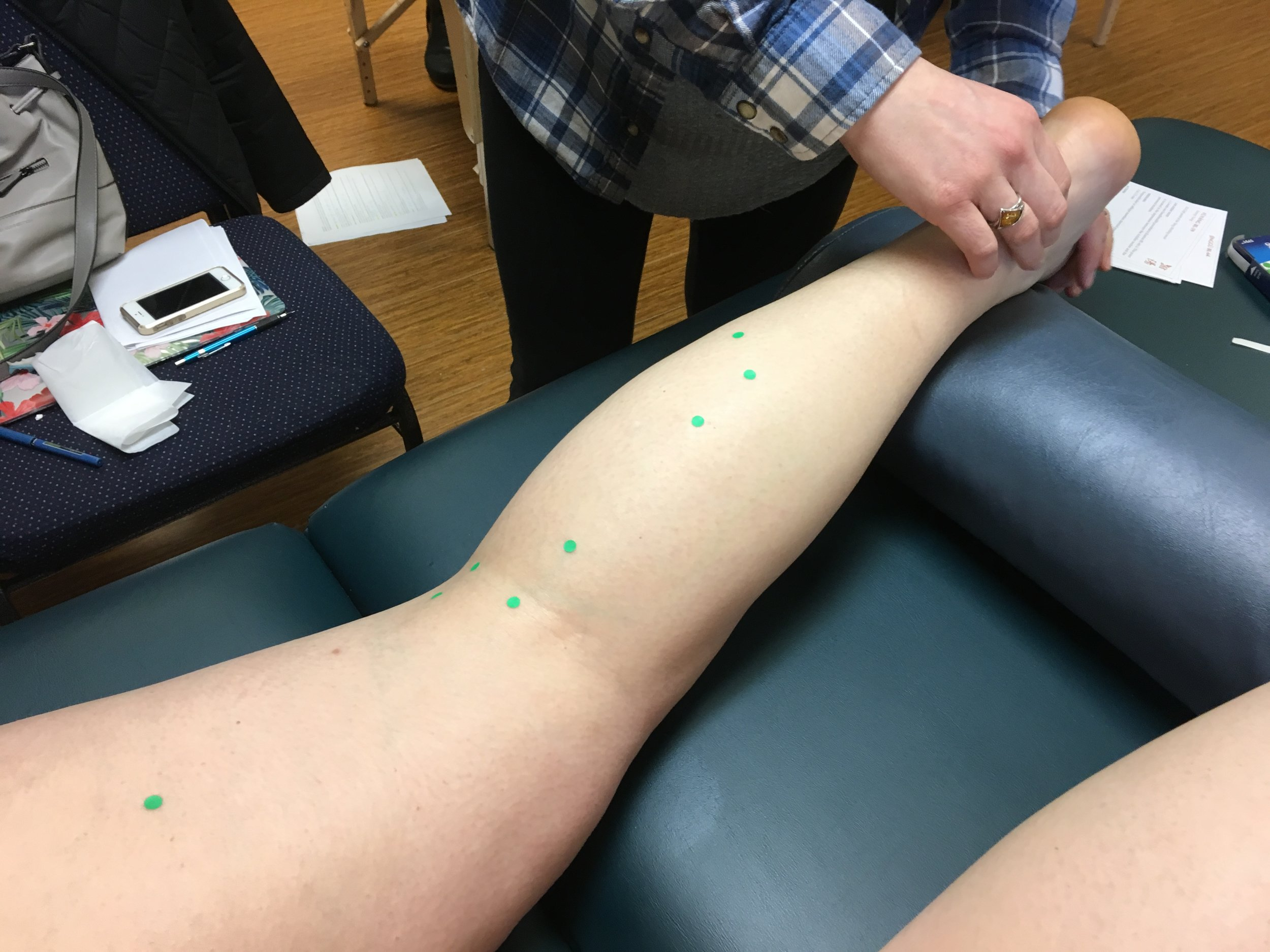 Finding acupuncture points on the extremities