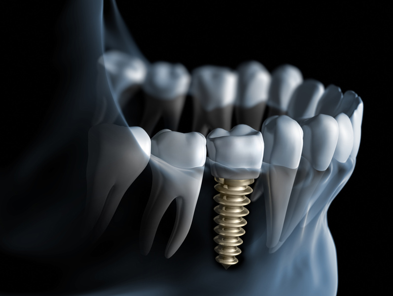 Dental-Implant-12.jpg