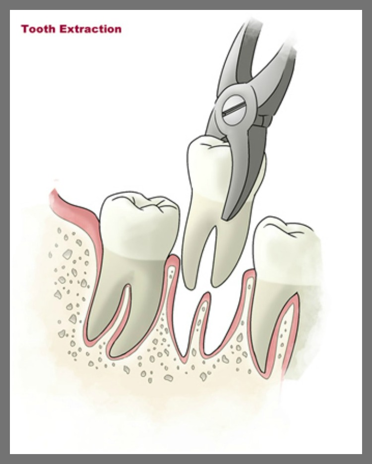 Tooth-Extraction.png