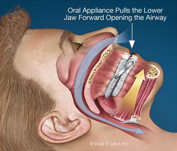 oral-appliance-mouthguard.jpg