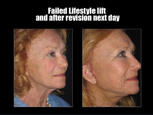 face-lift-1.jpg
