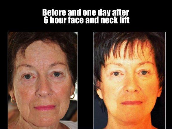 face-lift-4.jpg