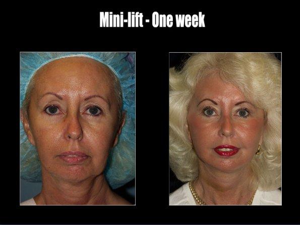 face-lift-6.jpg