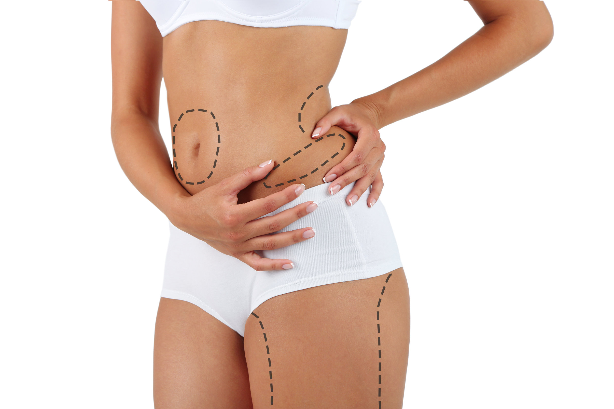 vaser liposuction dr michael stampar spago day spa medispa and salon punta gorda florida