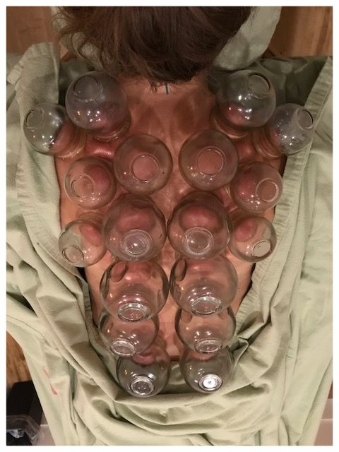 Cupping during