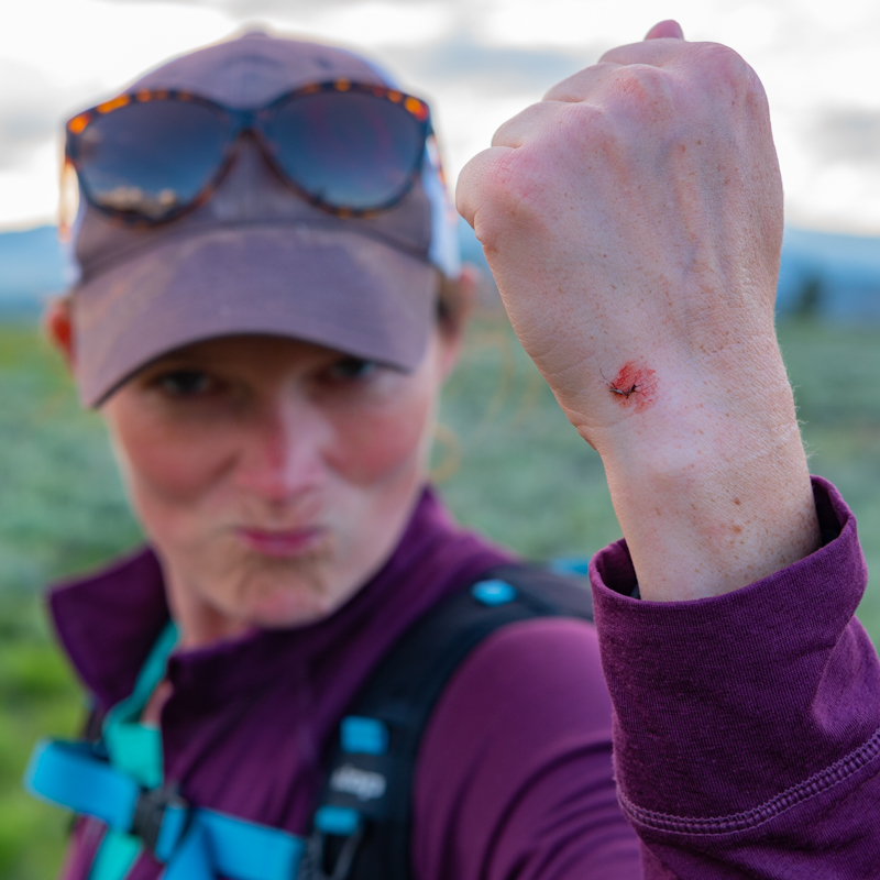 Woman Holds UP Hand with Bloody Mosquito