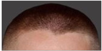 Widow's Peak Hairline -
