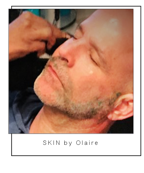 Skin rejuvenation done in a non invasive way with Olaire