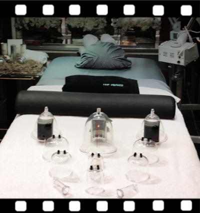 Cupping massage is available here in New York at our private midtown spa.