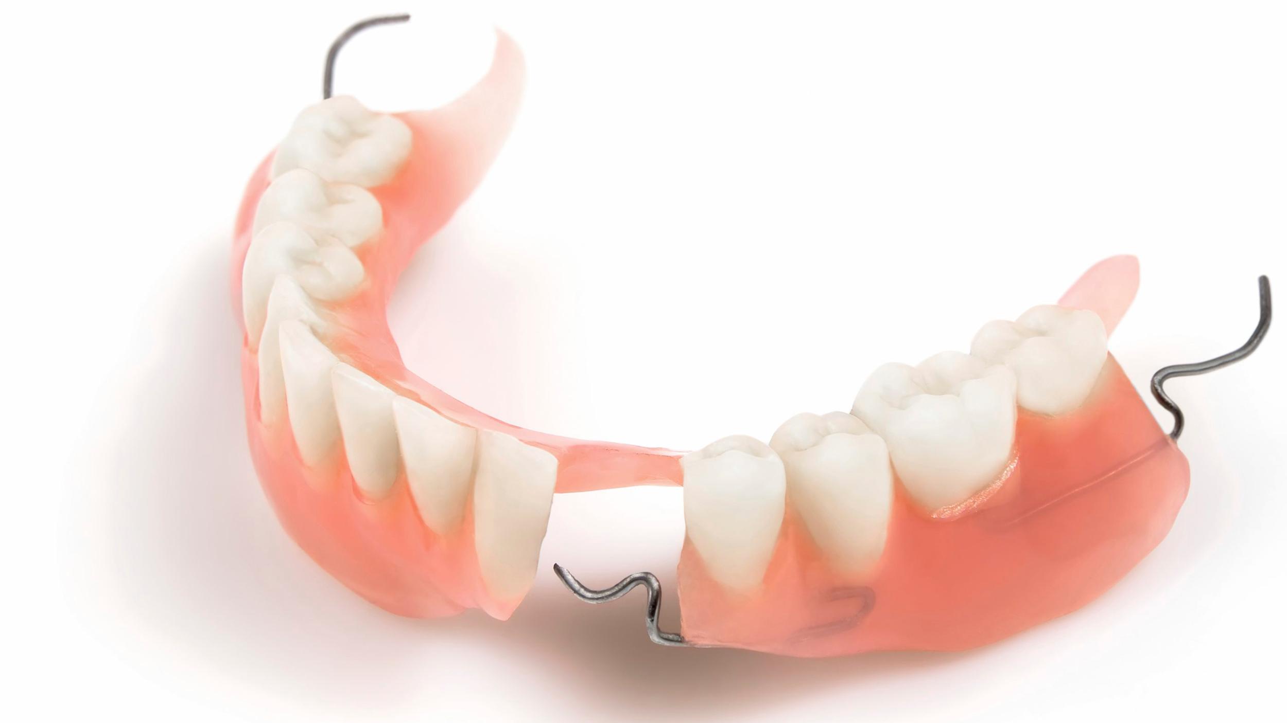 partial-dentures.png