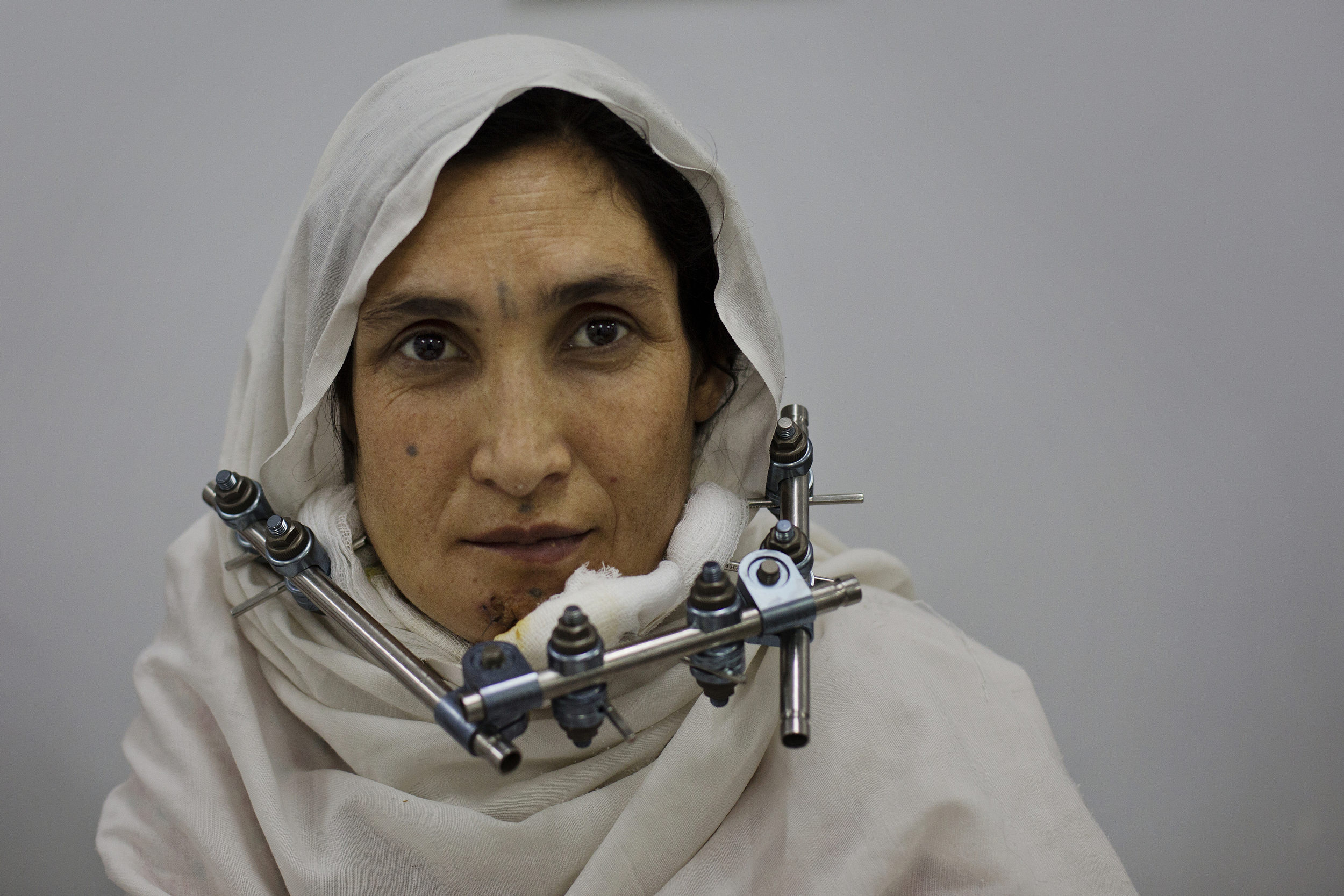 Maryam recovers from a bullet that shattered her jaw while she is 7 months pregnant.