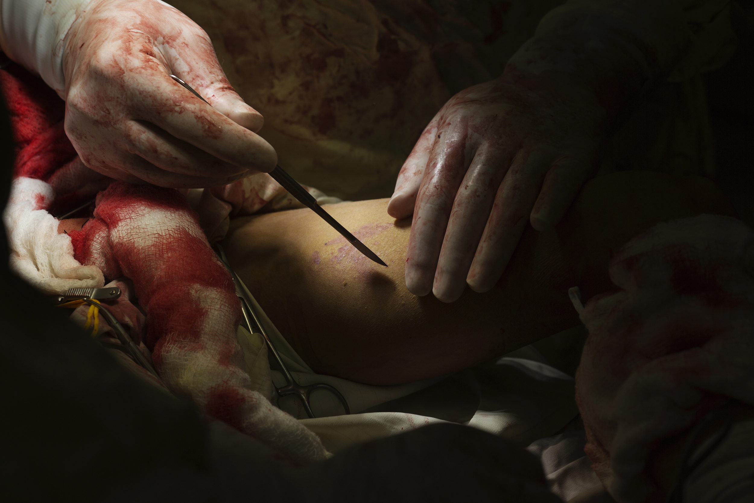 Dr. Shukur Sardar prepares to open the thigh of Jan Mohammed, 10, to extract a vein for a vascular graft, after he suffered multiple blast injuries from an unexploded munition.