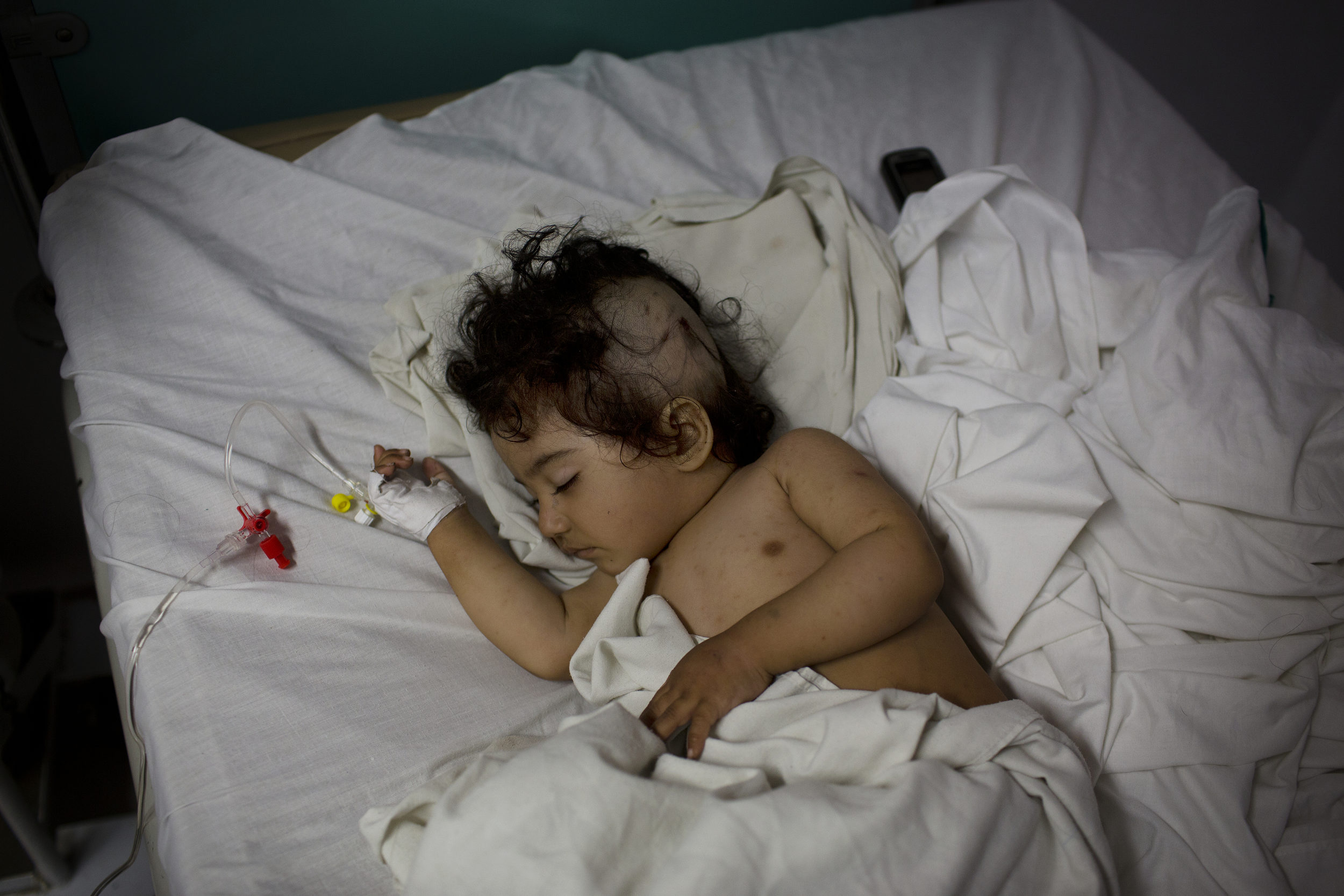 Nasirullah, 1, who suffered a shrapnel injury to her head,sleeps in the sub-ICU.