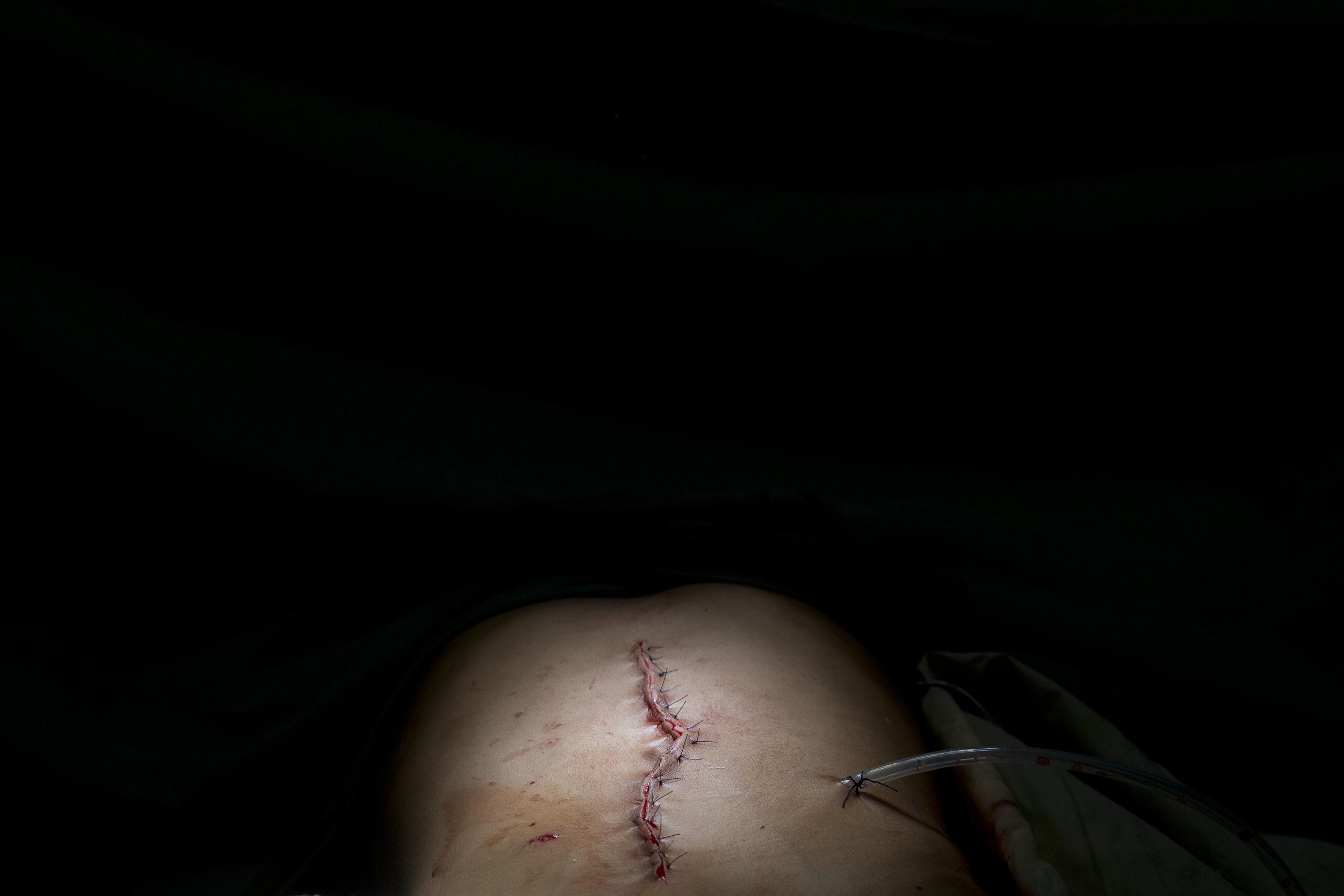 After a laparotomy.