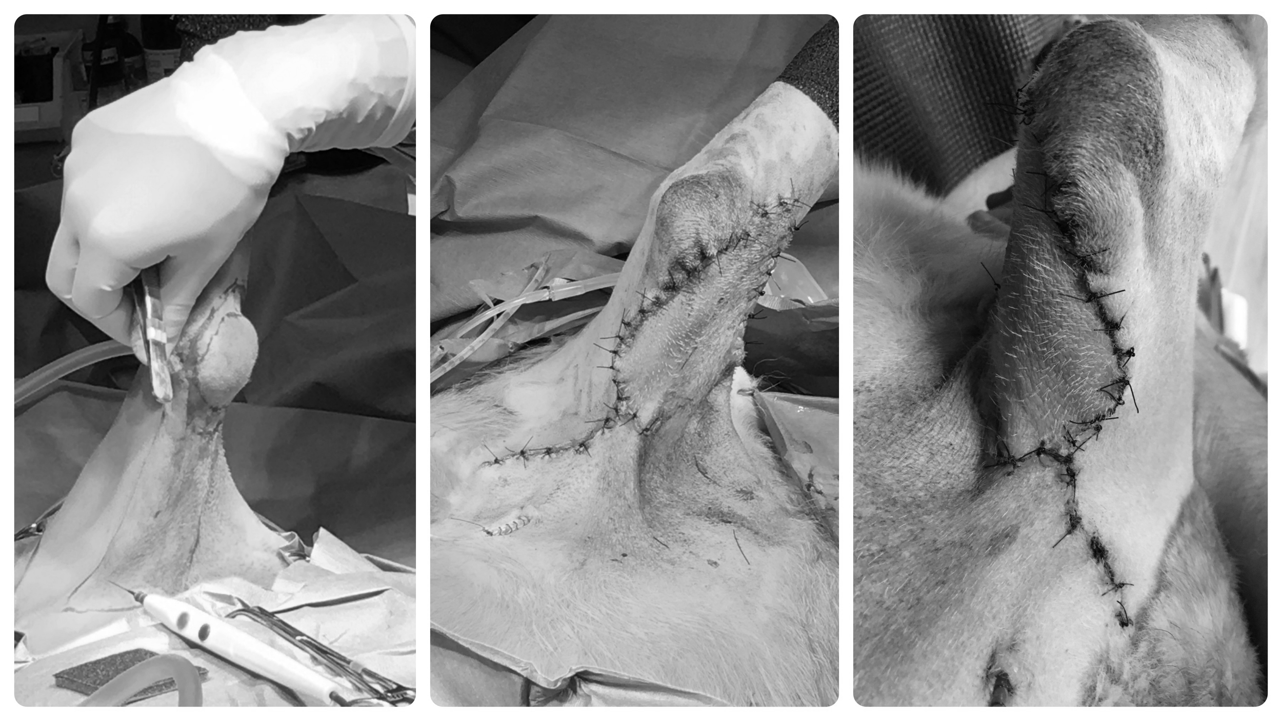 Mass removal with flap closure
