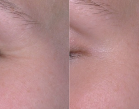 Copy of Before/After