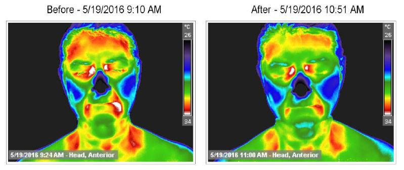 "Pranic Healing Effects on a Client's Physiology  These are before and after Thermographic, or Thermal, Images of the shift in a client's actual physiology (read: inflammation) before and after a Pranic Healing Session. The images on the left were taken at 9:24am on 5/19/16 and the images on the right were taken after an hour Pranic Healing session at 11:00 on the same day. The red and white areas indicate inflammation while green is the ""within normal range"" temperaure. Blue and purple indicate cold and black is where there is NO infrared energy available."
