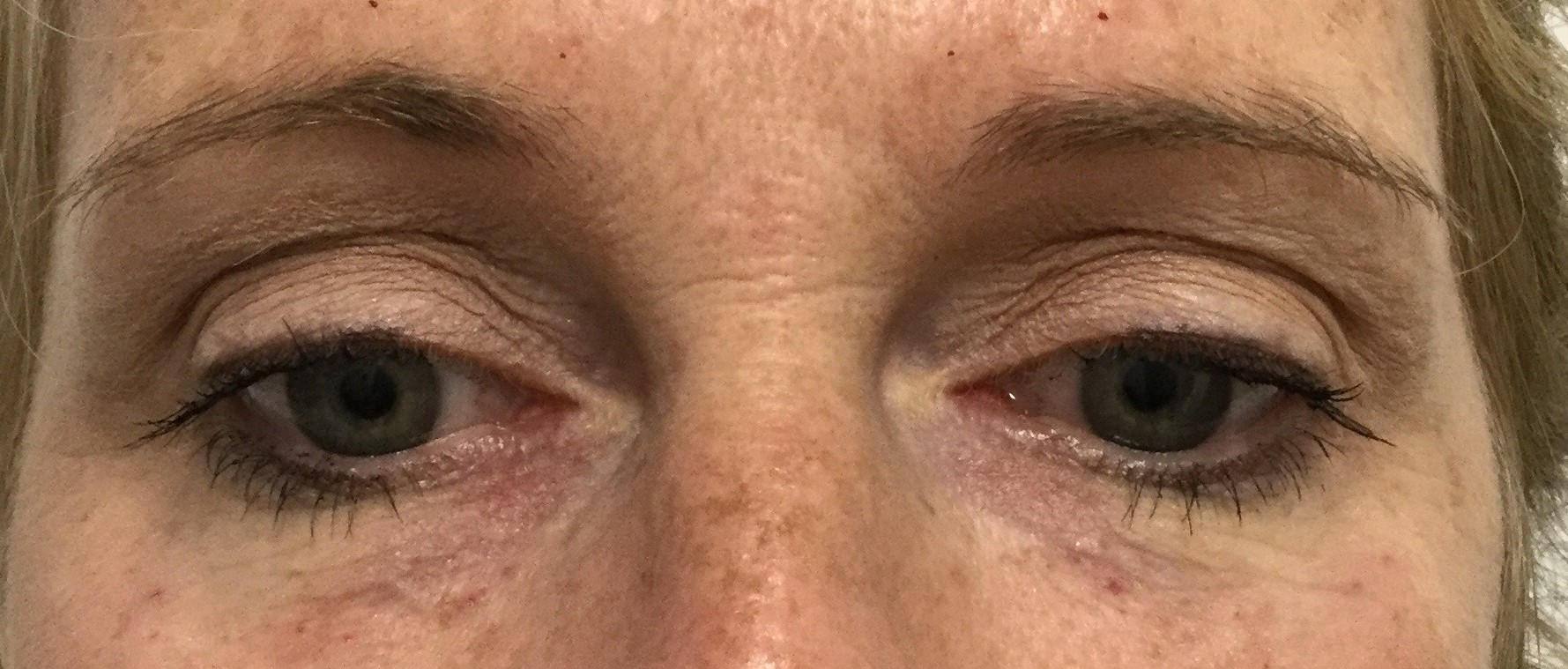 After: 1 syringe of Restylane Silk