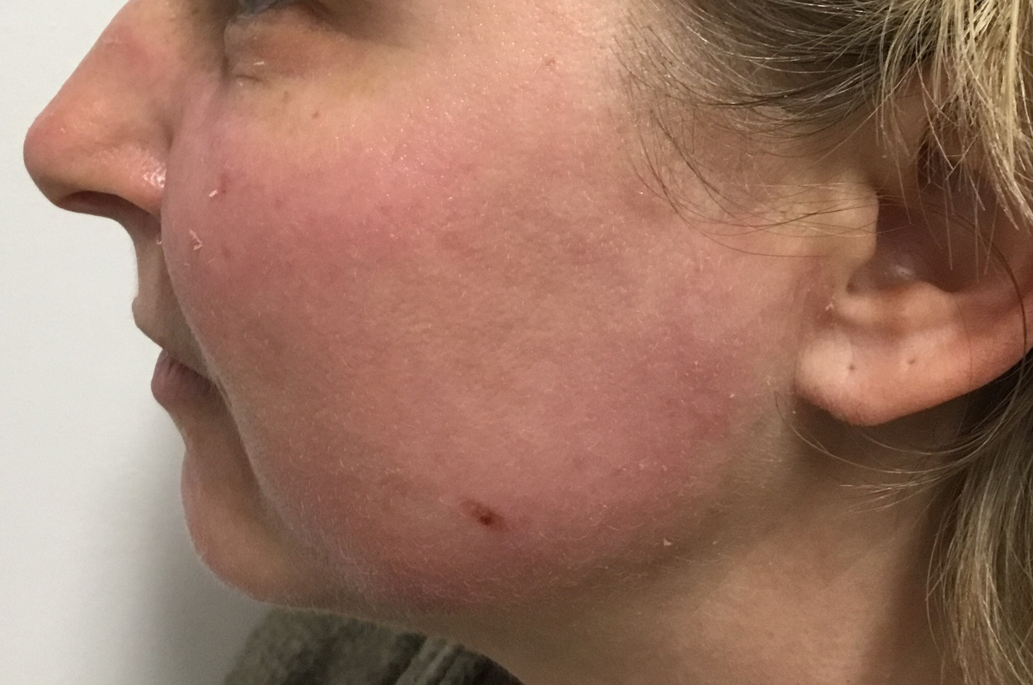 After: 8 days post medium depth peel