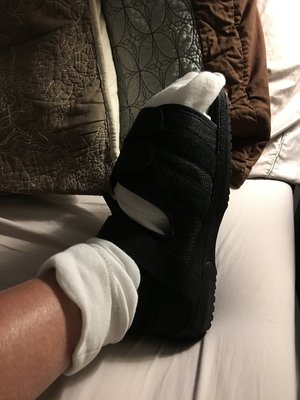 Tracy_foot_surgery.JPG