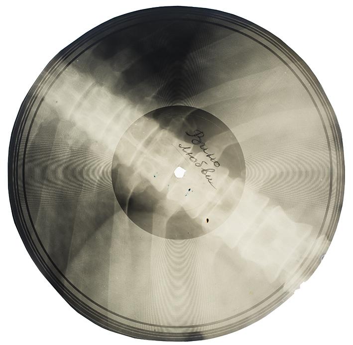 """X-Ray """"Bone Music"""""""