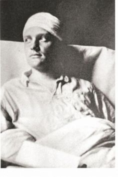 The Red Baron appearing with his bandaged head after surgery.