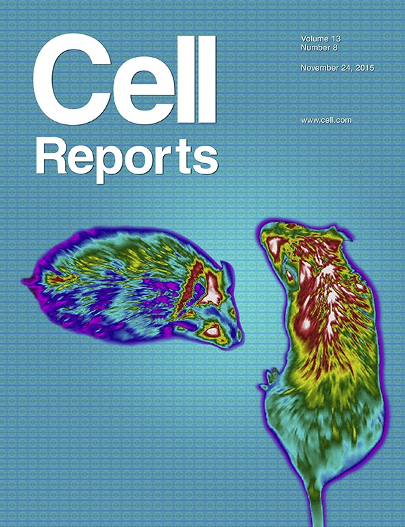 On the cover:  Kwon et al.  use infrared thermal imaging to measure body surface temperature near interscapular BAT during a glucose meal in vehicle and FGF21-treated mice. Images depict body surface heat distribution of mice during such meal. The study reveals that there is a decrease in BAT temperature during glucose excursions and that FGF21 improves glucose clearance while preventing the fall in BAT temperature.
