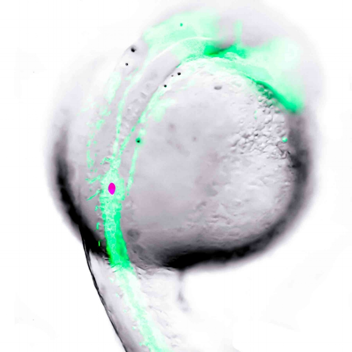beta-cell development in the zebrafish. one day old transgenic zebrafish embryo with developing vasculature and beta-cells labelled with green and red fluorescent protein, respectively.