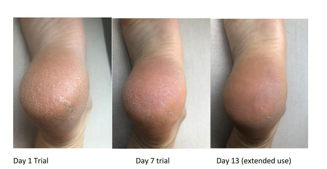 heavenly+heels+trial+day+1-13.jpg