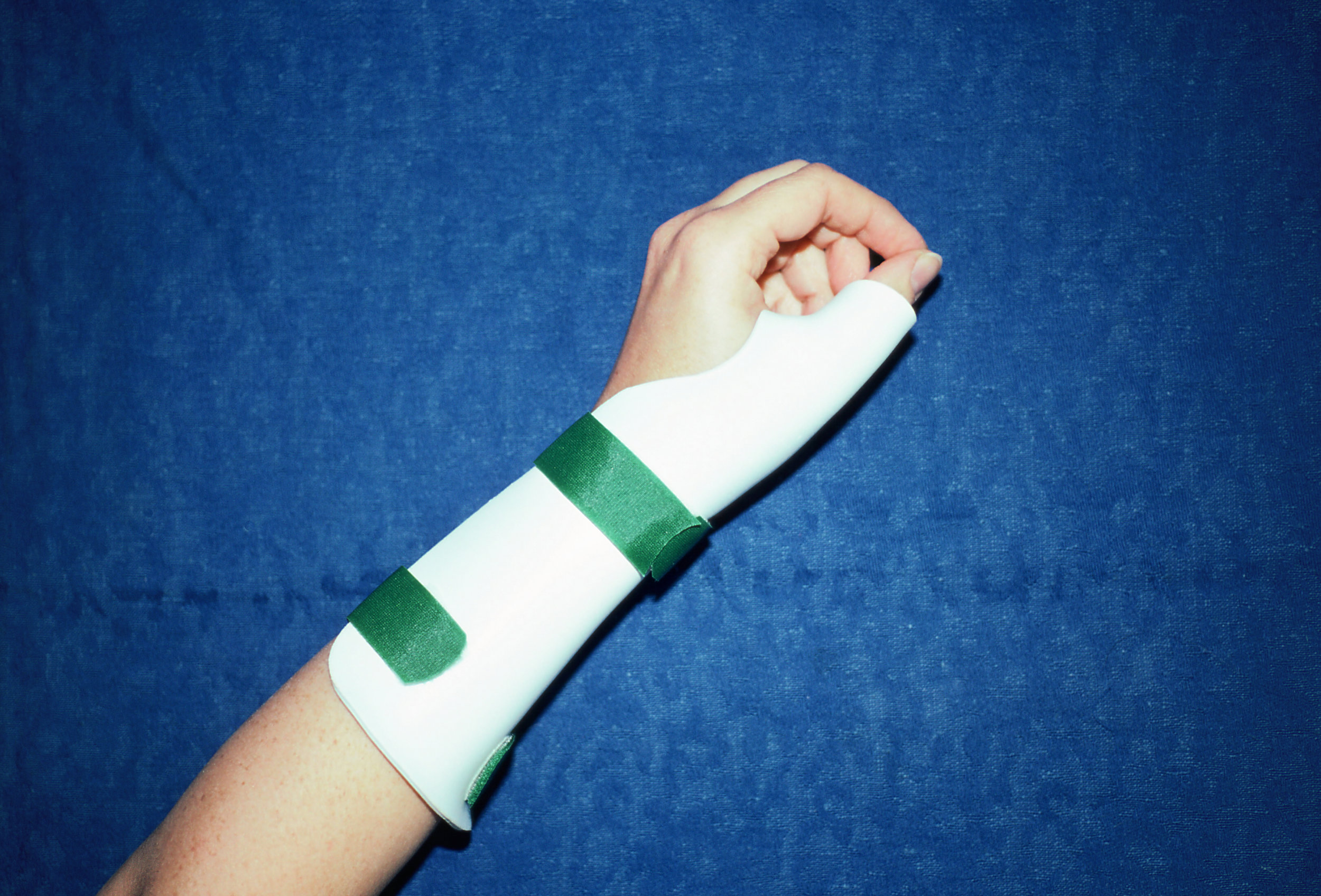 forearmthumbspica.jpg