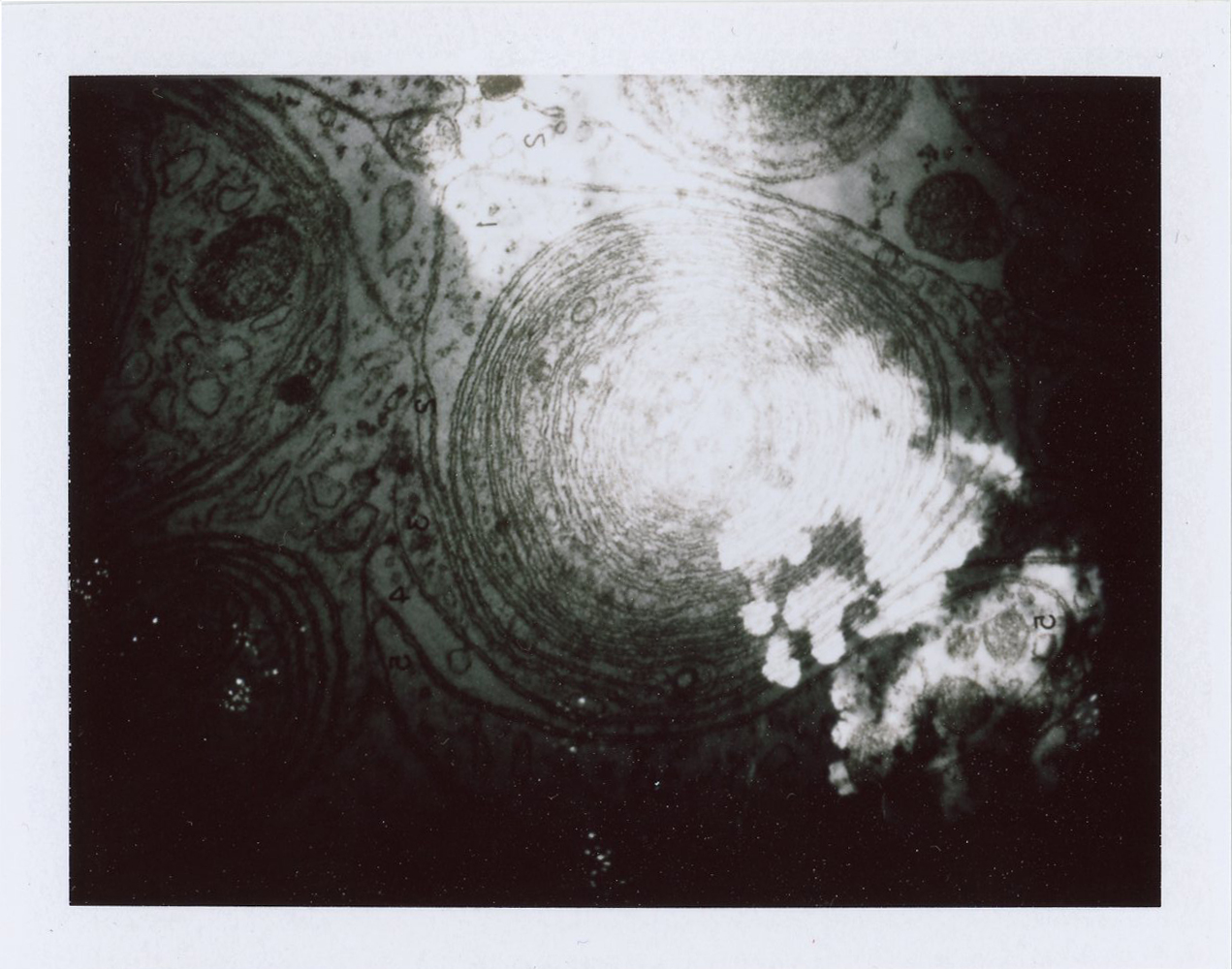 Sandwiched Slides (Fireworks & Cells), 2019
