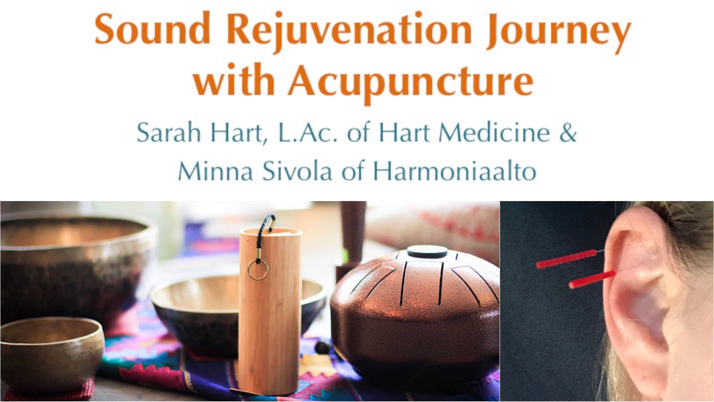 Sound Rejuvenation Journey with acupuncture.jpg
