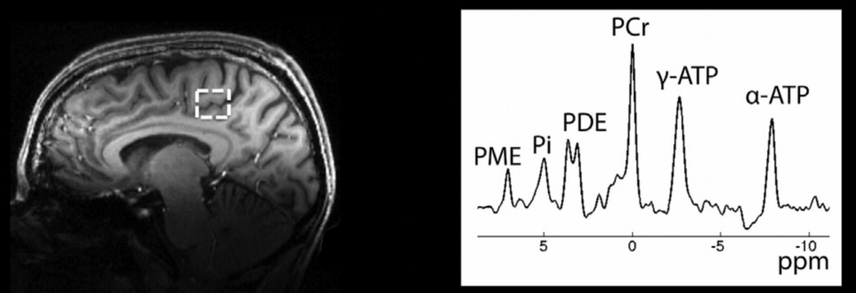 Proton MPRage and Phosphorus CSI voxel