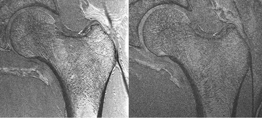 Trabeculae visualization in the femoral neck