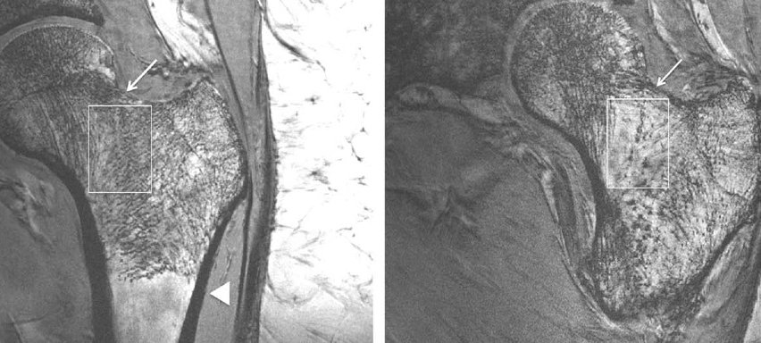 Osteoperosis deteriorates trabeculae (right)