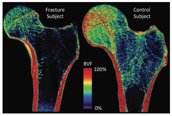 Volume-rendered bone volume fraction maps