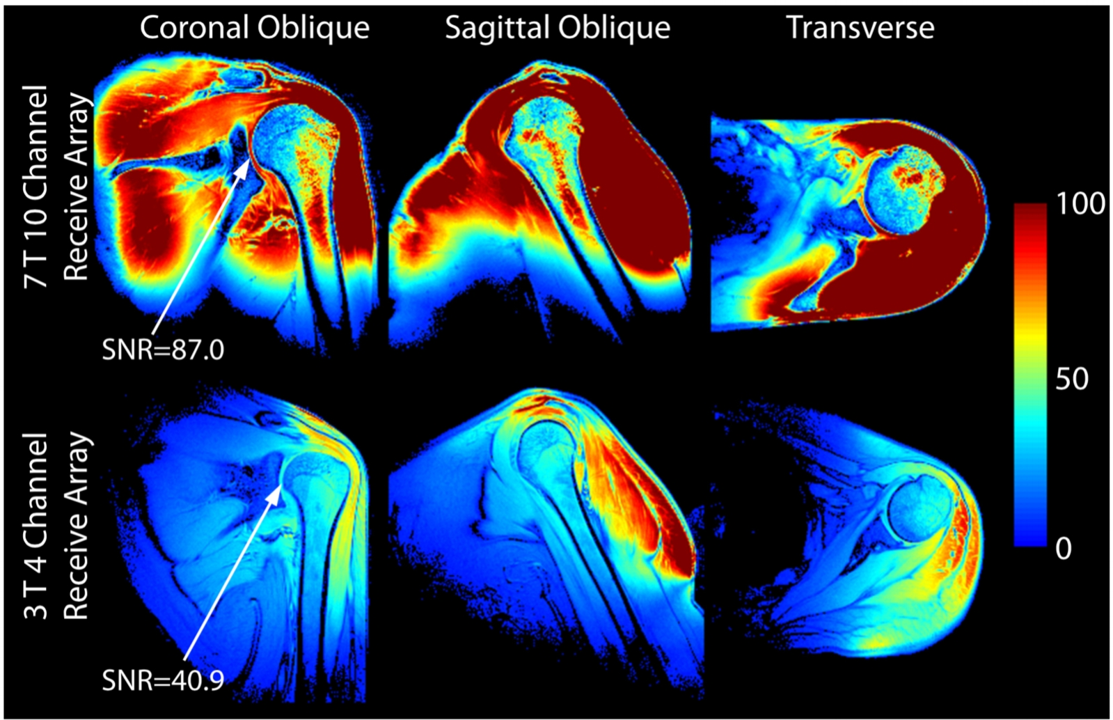 Our hardware provides a two-fold SNR gain in the articular cartilage