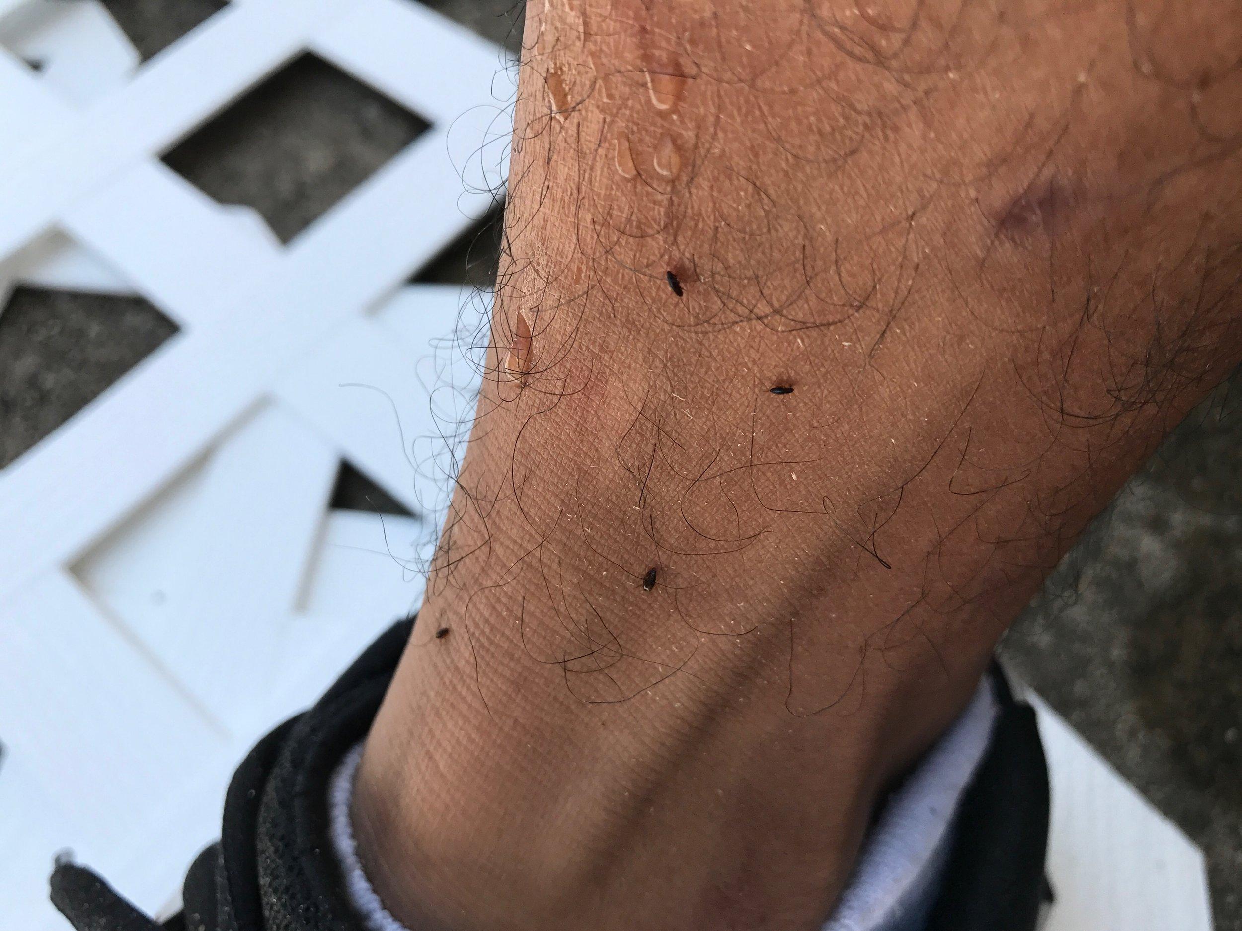 Fleas on leg