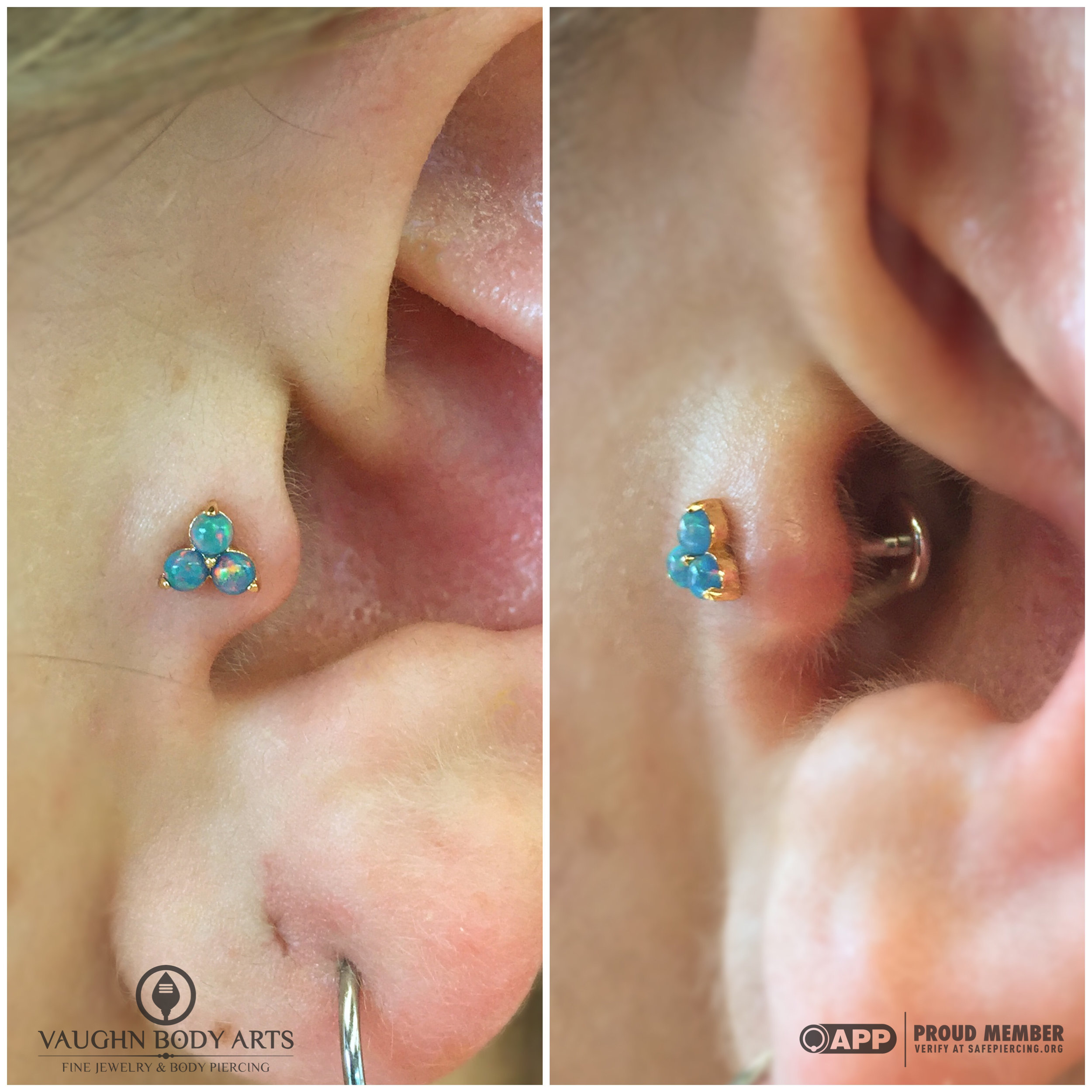 """Tragus piercing with an 18k yellow gold and opal """"Trio"""" end from Anatometal."""