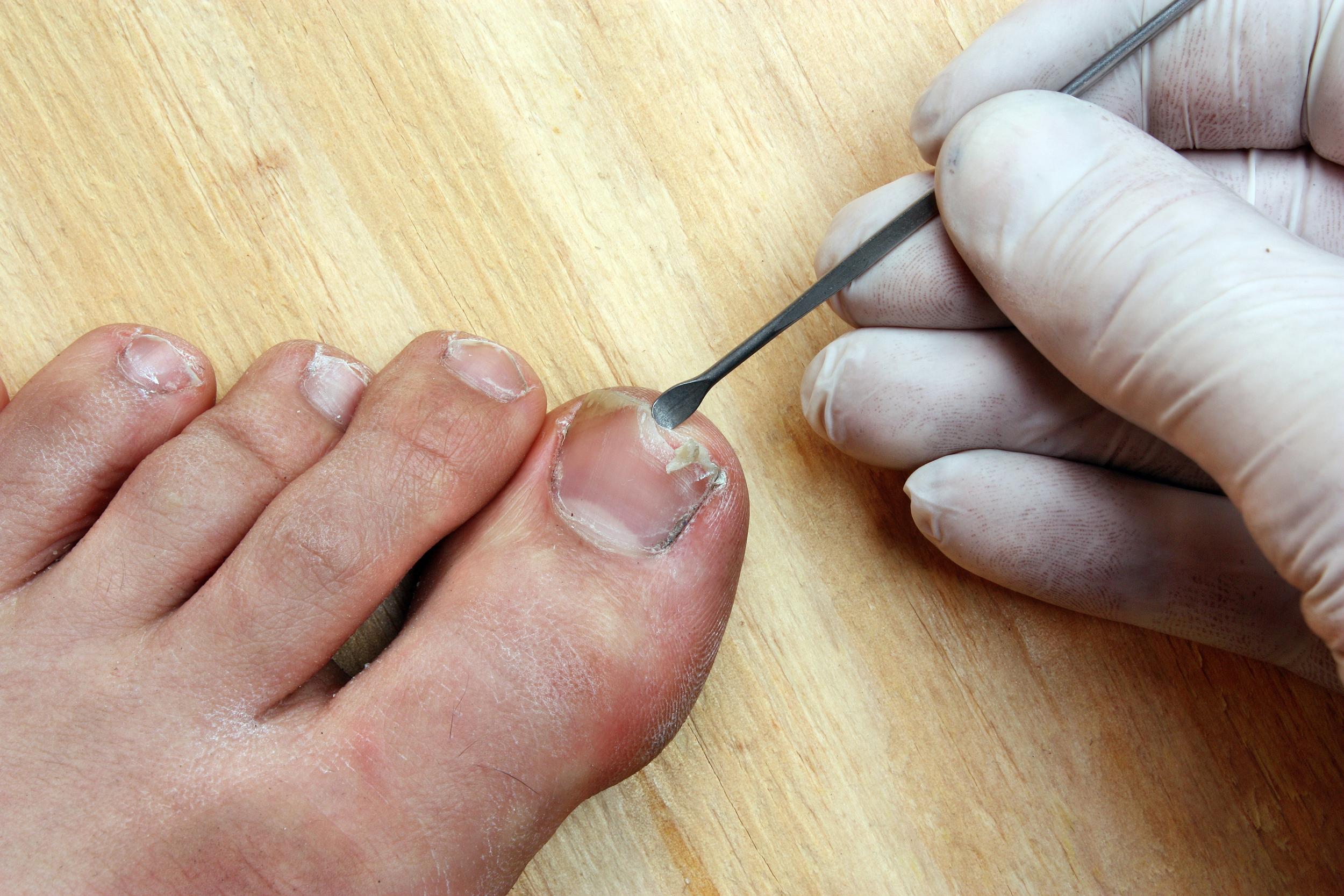 haag-foot-ankle-ingrown-toenails