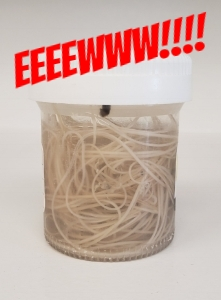 Jar of not spaghetti - those are heartworms!