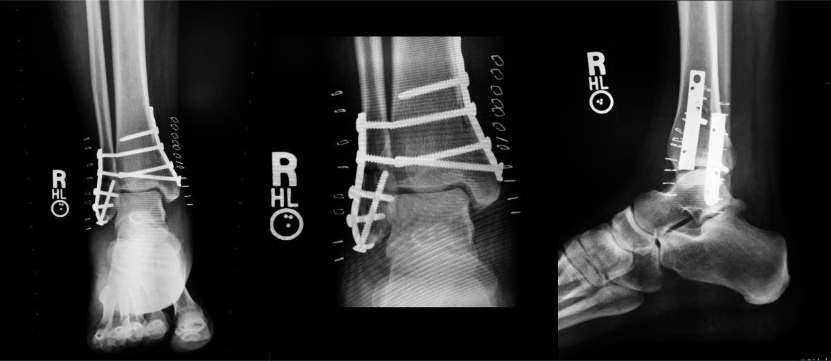 Yes, this is my ankle. No, it doesn't set off metal detectors.