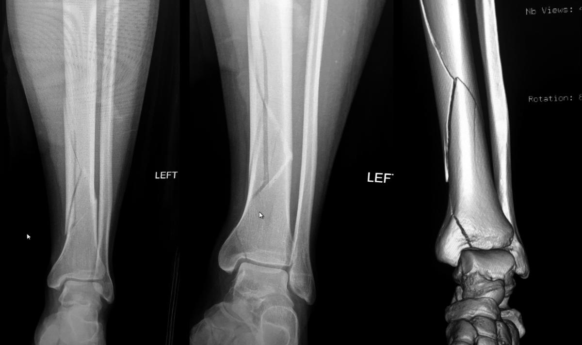 Left leg, pre-op, September 2017.