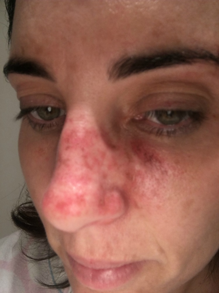 Cancer Face Nose PM.jpg